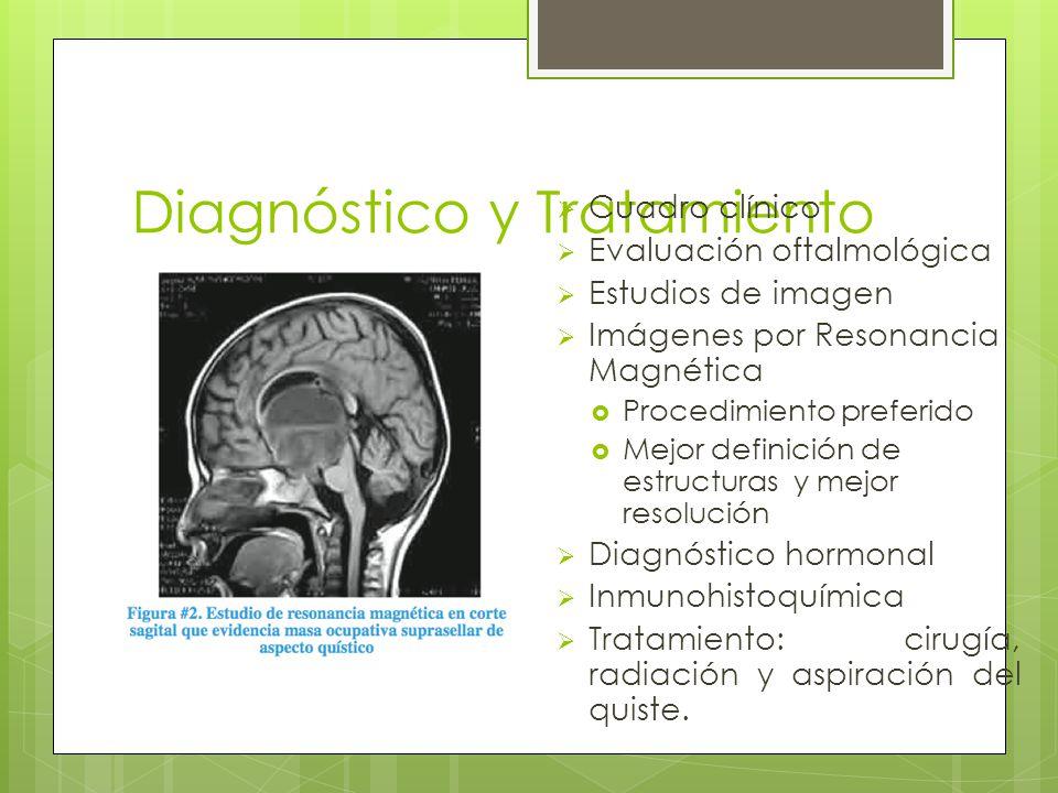 Diagnóstico y Tratamiento Cuadro clínico Evaluación oftalmológica Estudios de imagen Imágenes por Resonancia Magnética Procedimiento preferido Mejor d