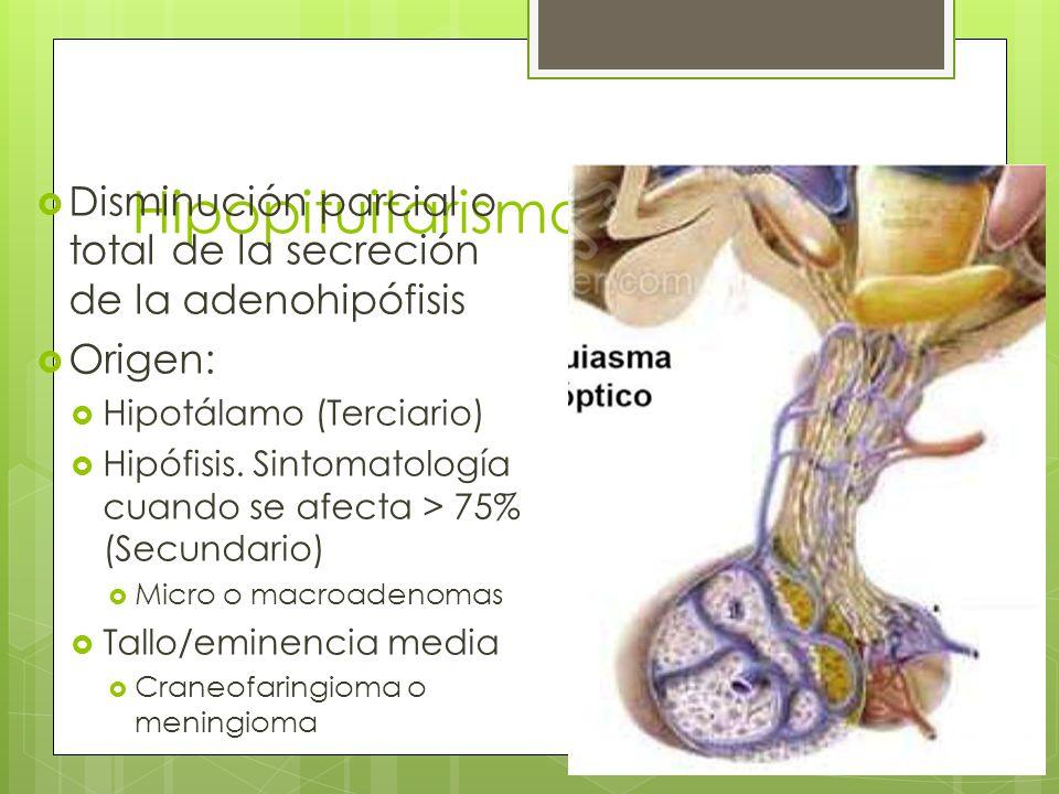 Hipopituitarismo Disminución parcial o total de la secreción de la adenohipófisis Origen: Hipotálamo (Terciario) Hipófisis. Sintomatología cuando se a