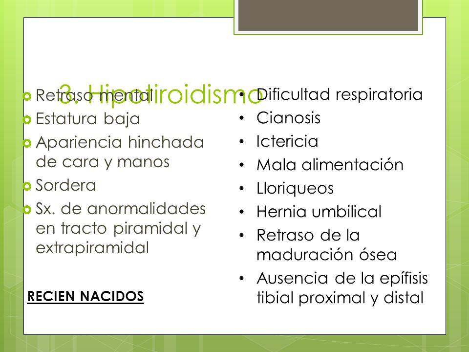 3. Hipotiroidismo Retraso mental Estatura baja Apariencia hinchada de cara y manos Sordera Sx. de anormalidades en tracto piramidal y extrapiramidal D