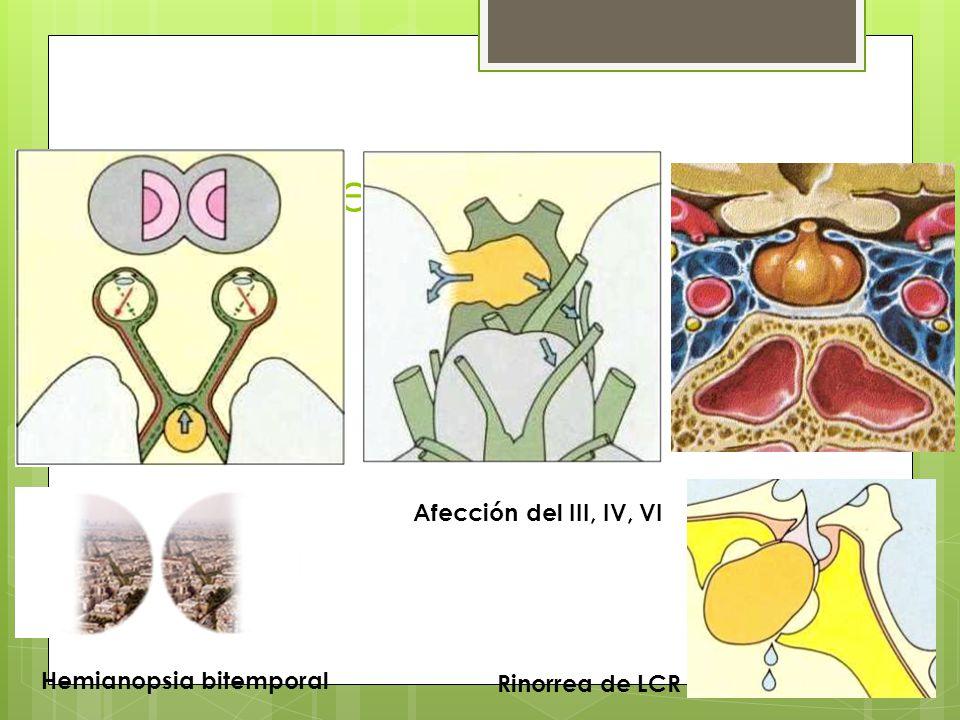Afección del III, IV, VI Hemianopsia bitemporal Rinorrea de LCR