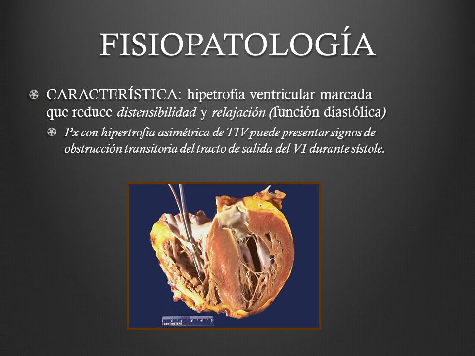 FISIOPATOLOGÍA CARACTERÍSTICA: hipetrofia ventricular marcada que reduce distensibilidad y relajación ( función diastólica ) Px con hipertrofia asimét