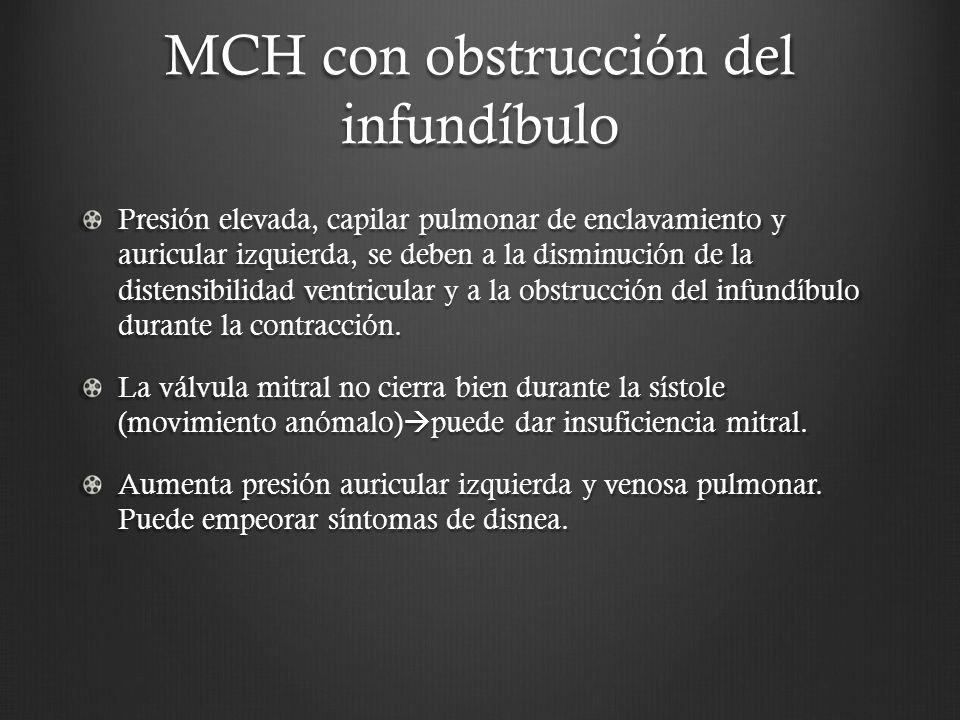 MCH con obstrucción del infundíbulo Presión elevada, capilar pulmonar de enclavamiento y auricular izquierda, se deben a la disminución de la distensi