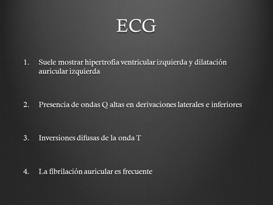 ECG 1.Suele mostrar hipertrofia ventricular izquierda y dilatación auricular izquierda 2.Presencia de ondas Q altas en derivaciones laterales e inferi