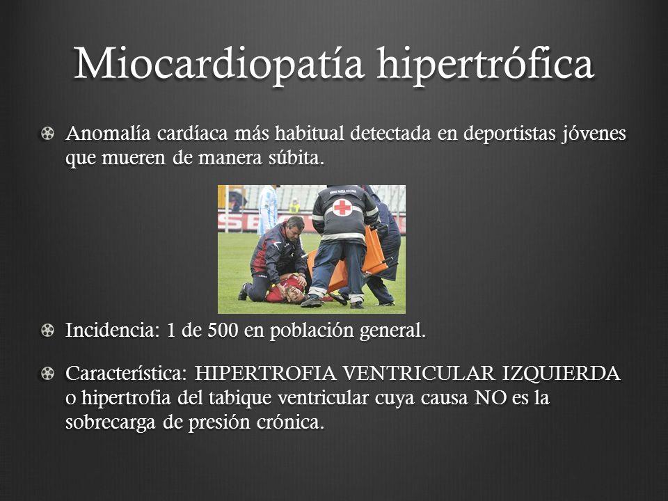Miocardiopatía hipertrófica Anomalía cardíaca más habitual detectada en deportistas jóvenes que mueren de manera súbita. Incidencia: 1 de 500 en pobla