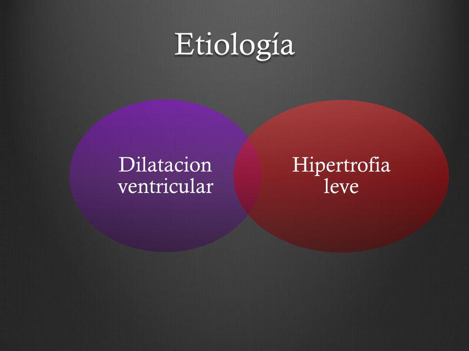 Etiología Dilatacion ventricular Hipertrofia leve