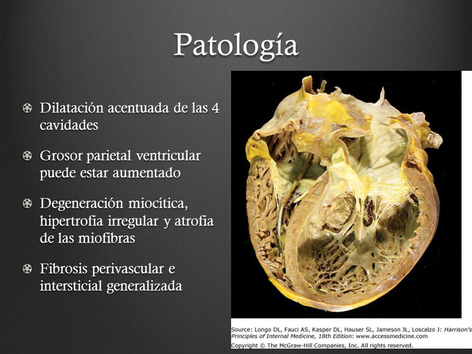 Patología Dilatación acentuada de las 4 cavidades Grosor parietal ventricular puede estar aumentado Degeneración miocítica, hipertrofia irregular y at