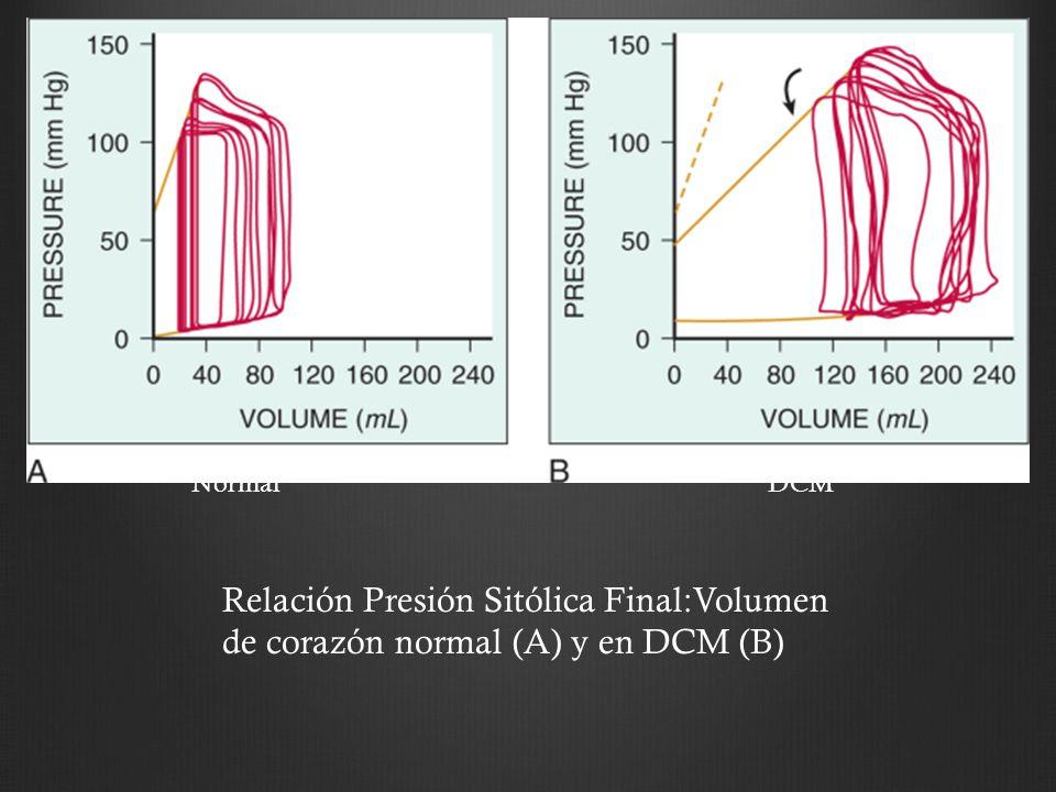 NormalDCM Relación Presión Sitólica Final:Volumen de corazón normal (A) y en DCM (B)