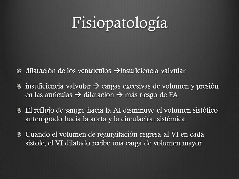 Fisiopatología dilatación de los ventrículos insuficiencia valvular insuficiencia valvular cargas excesivas de volumen y presión en las aurículas dila