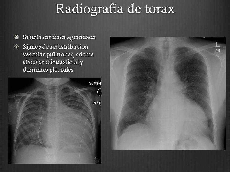 Radiografia de torax Silueta cardiaca agrandada Signos de redistribucion vascular pulmonar, edema alveolar e intersticial y derrames pleurales