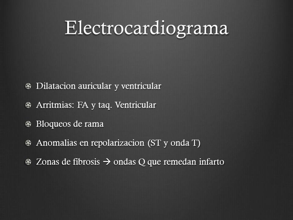 Electrocardiograma Dilatacion auricular y ventricular Arritmias: FA y taq. Ventricular Bloqueos de rama Anomalias en repolarizacion (ST y onda T) Zona