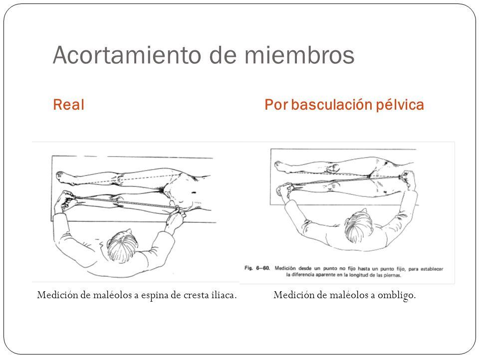 Acortamiento de miembros RealPor basculación pélvica Medición de maléolos a espina de cresta iliaca. Medición de maléolos a ombligo.