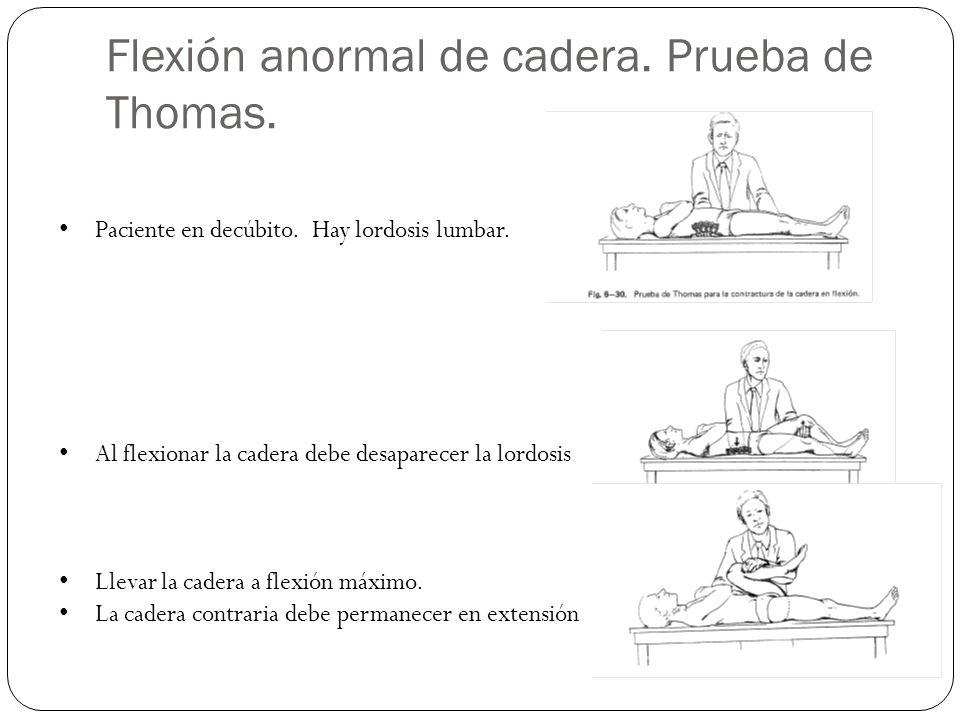 Flexión anormal de cadera. Prueba de Thomas. Paciente en decúbito. Hay lordosis lumbar. Al flexionar la cadera debe desaparecer la lordosis Llevar la