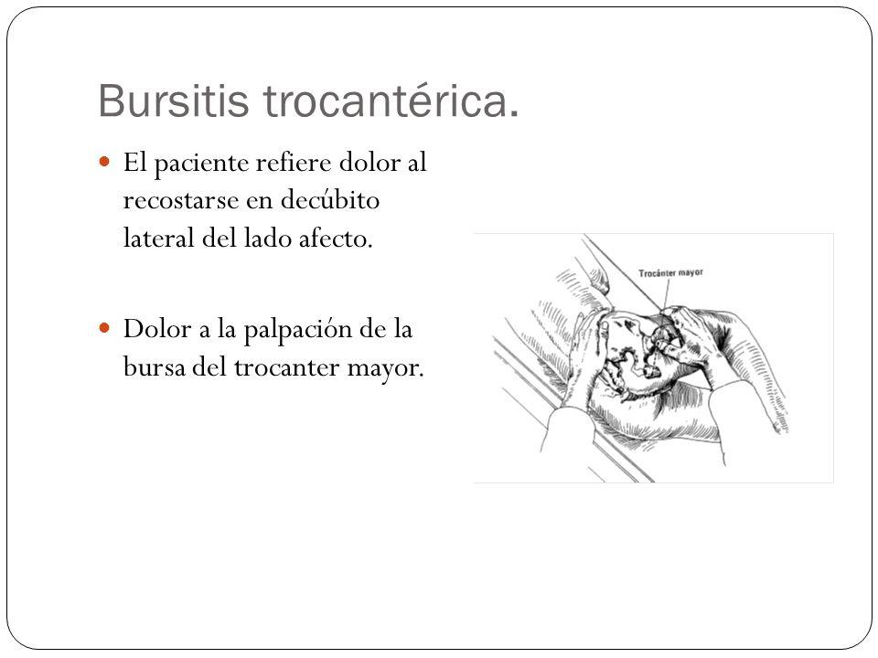 Bursitis trocantérica. El paciente refiere dolor al recostarse en decúbito lateral del lado afecto. Dolor a la palpación de la bursa del trocanter may