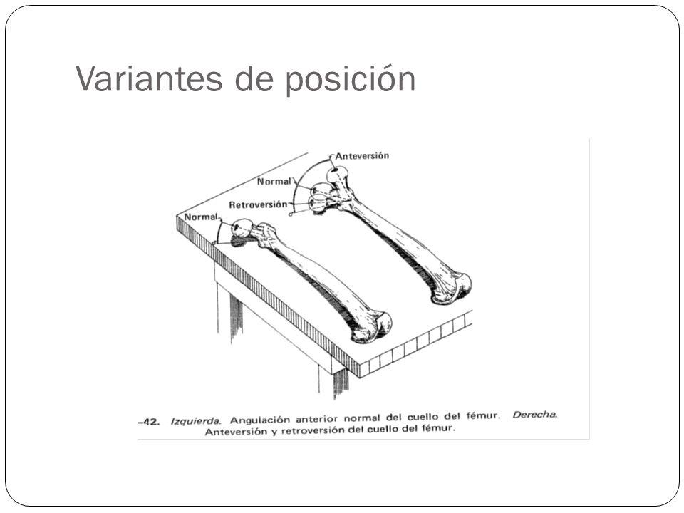 Variantes de posición