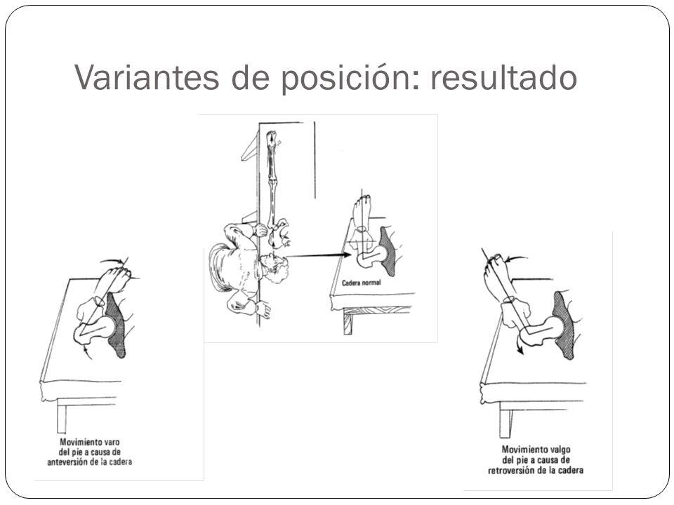 Variantes de posición: resultado