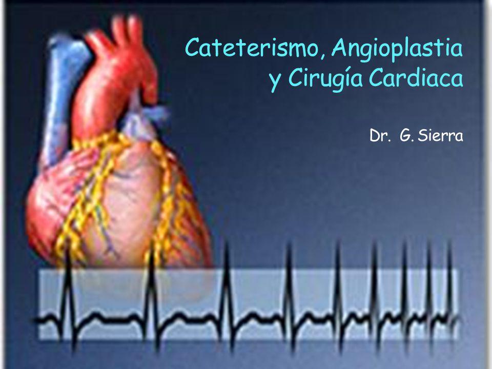 Cateterismo, Angioplastia y Cirugía Cardiaca Dr. G. Sierra