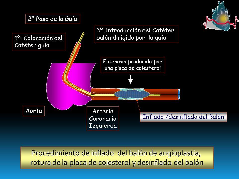 Aorta Arteria Coronaria Izquierda Estenosis producida por una placa de colesterol 1º: Colocación del Catéter guía 2º Paso de la Guía 3º Introducción d