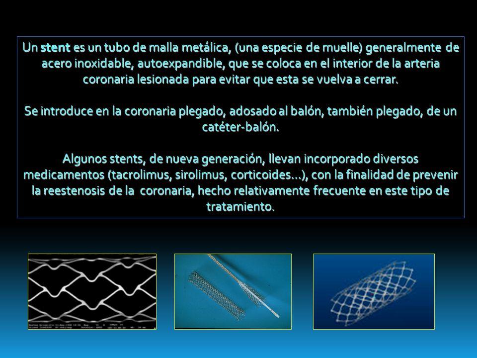 Un stent es un tubo de malla metálica, (una especie de muelle) generalmente de acero inoxidable, autoexpandible, que se coloca en el interior de la ar