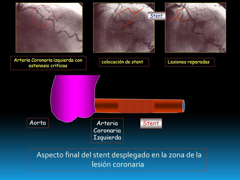 Aorta Arteria Coronaria Izquierda Aspecto final del stent desplegado en la zona de la lesión coronaria Stent Arteria Coronaria izquierda con estenosis