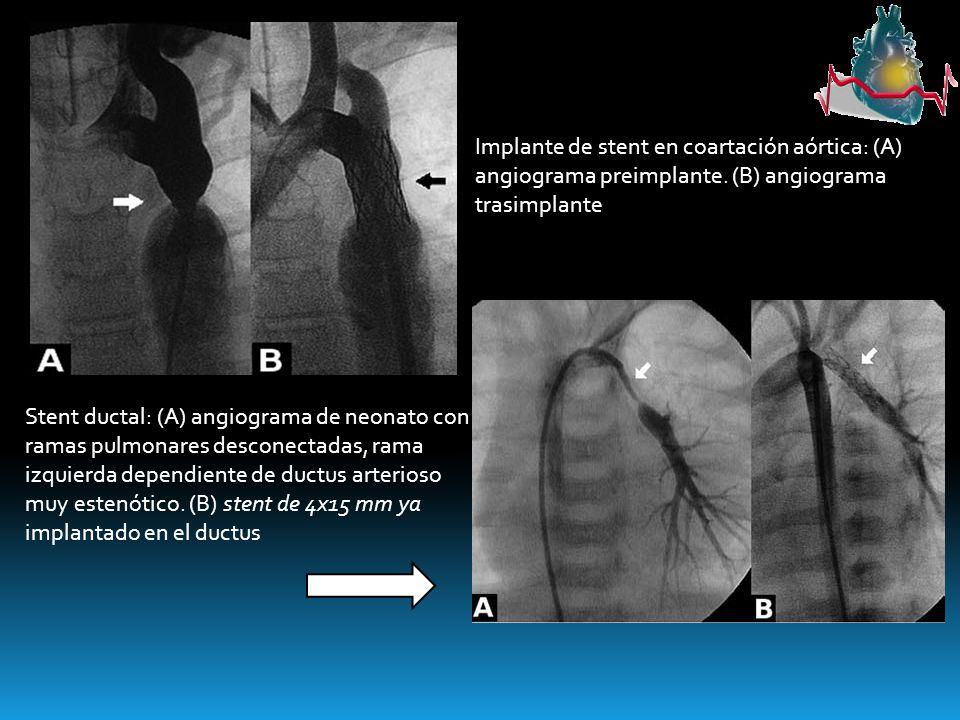 Implante de stent en coartación aórtica: (A) angiograma preimplante. (B) angiograma trasimplante Stent ductal: (A) angiograma de neonato con ramas pul
