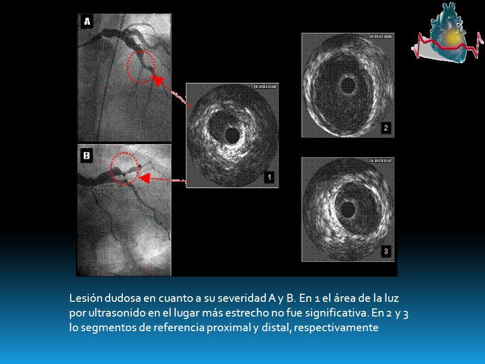 Lesión dudosa en cuanto a su severidad A y B. En 1 el área de la luz por ultrasonido en el lugar más estrecho no fue significativa. En 2 y 3 lo segmen