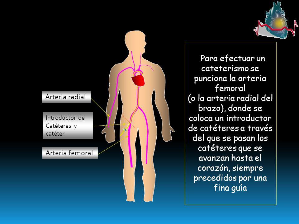 Arteria femoral Arteria radial Introductor de Catéteres y catéter Para efectuar un cateterismo se punciona la arteria femoral (o la arteria radial del