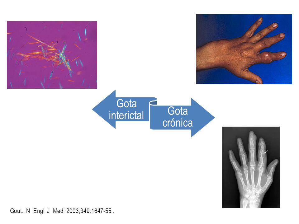Gota interictal Gota crónica Gout. N Engl J Med 2003;349:1647-55..