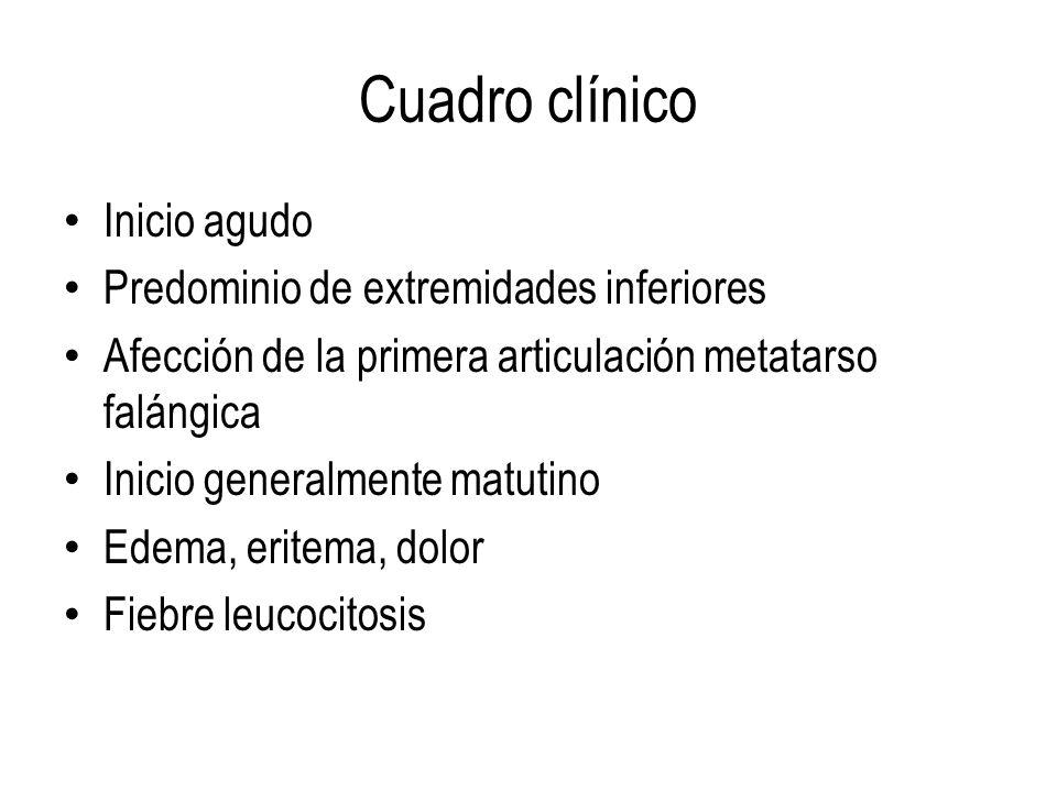 Cuadro clínico Inicio agudo Predominio de extremidades inferiores Afección de la primera articulación metatarso falángica Inicio generalmente matutino