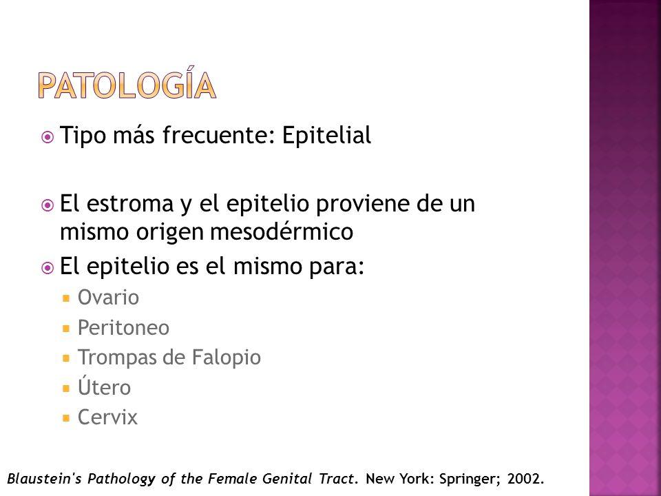 Tipo más frecuente: Epitelial El estroma y el epitelio proviene de un mismo origen mesodérmico El epitelio es el mismo para: Ovario Peritoneo Trompas de Falopio Útero Cervix Blaustein s Pathology of the Female Genital Tract.