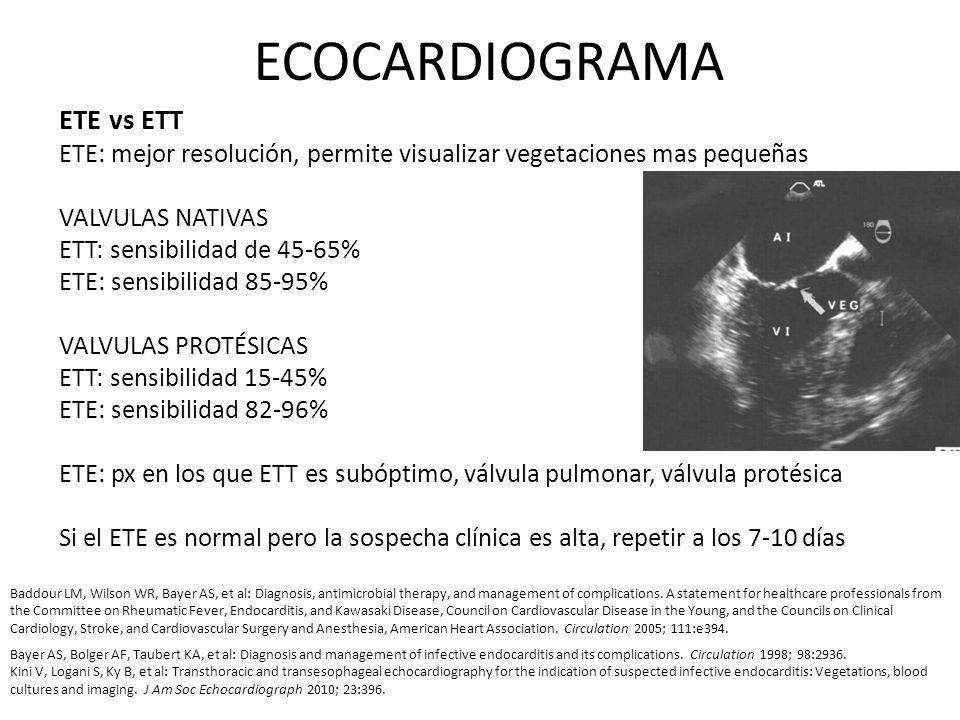 ECOCARDIOGRAMA ETE vs ETT ETE: mejor resolución, permite visualizar vegetaciones mas pequeñas VALVULAS NATIVAS ETT: sensibilidad de 45-65% ETE: sensib