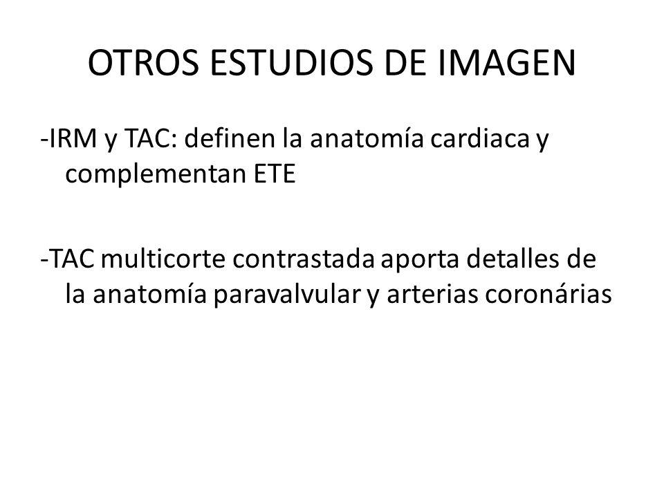 OTROS ESTUDIOS DE IMAGEN -IRM y TAC: definen la anatomía cardiaca y complementan ETE -TAC multicorte contrastada aporta detalles de la anatomía parava