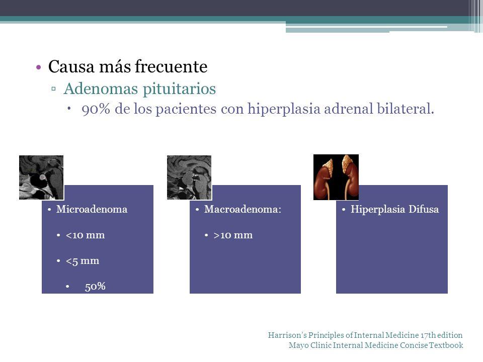 Causa más frecuente Adenomas pituitarios 90% de los pacientes con hiperplasia adrenal bilateral. Microadenoma <10 mm <5 mm 50% Macroadenoma: >10 mm Hi