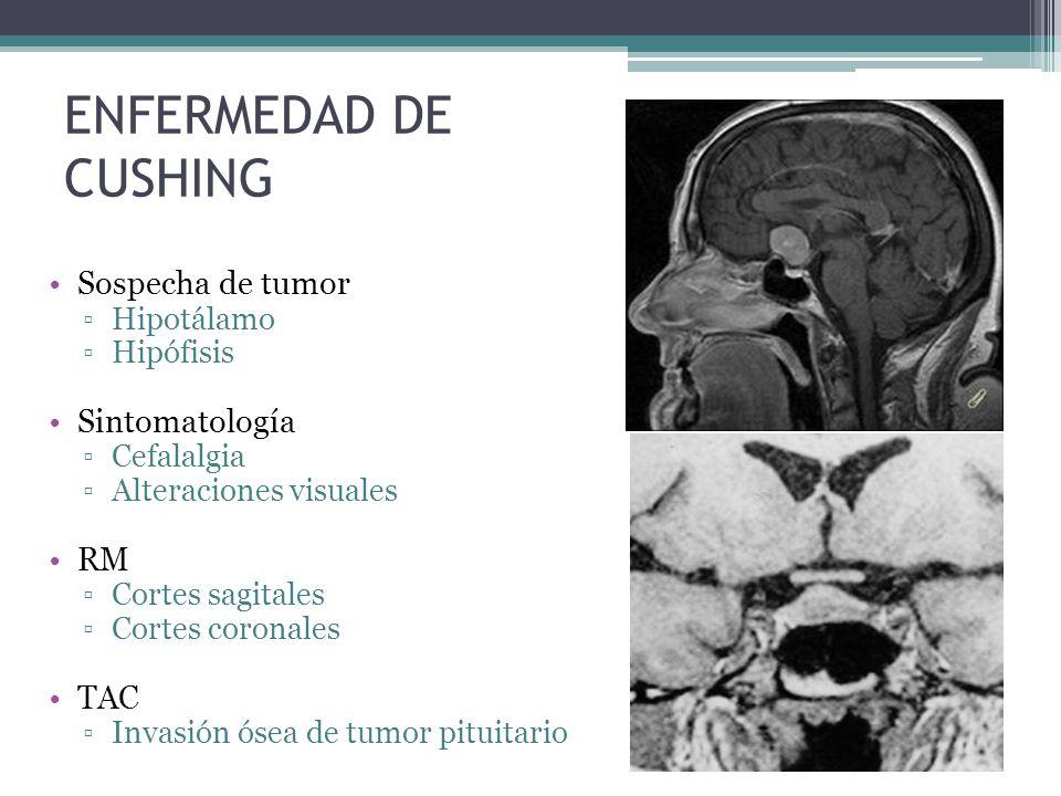 ENFERMEDAD DE CUSHING Sospecha de tumor Hipotálamo Hipófisis Sintomatología Cefalalgia Alteraciones visuales RM Cortes sagitales Cortes coronales TAC