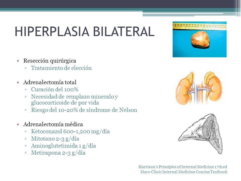 Resección quirúrgica Tratamiento de elección Adrenalectomía total Curación del 100% Necesidad de remplazo mineralo y glucocorticoide de por vida Riesg