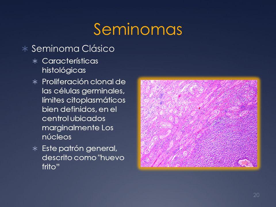 Seminomas Seminoma Clásico Características histológicas Proliferación clonal de las células germinales, límites citoplasmáticos bien definidos, en el