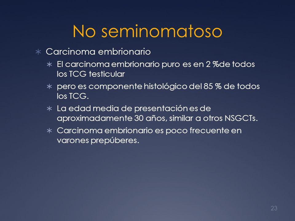 No seminomatoso Carcinoma embrionario El carcinoma embrionario puro es en 2 %de todos los TCG testicular pero es componente histológico del 85 % de to