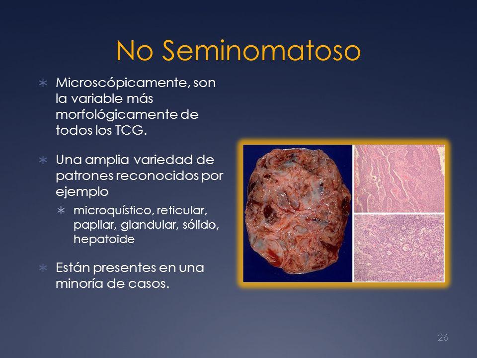 No Seminomatoso Microscópicamente, son la variable más morfológicamente de todos los TCG. Una amplia variedad de patrones reconocidos por ejemplo micr