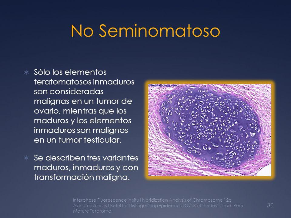 No Seminomatoso Sólo los elementos teratomatosos inmaduros son consideradas malignas en un tumor de ovario, mientras que los maduros y los elementos i