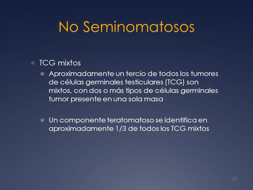 No Seminomatosos TCG mixtos Aproximadamente un tercio de todos los tumores de células germinales testiculares (TCG) son mixtos, con dos o más tipos de