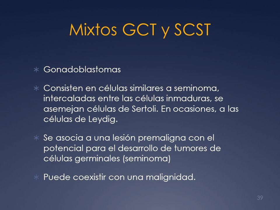 Mixtos GCT y SCST Gonadoblastomas Consisten en células similares a seminoma, intercaladas entre las células inmaduras, se asemejan células de Sertoli.