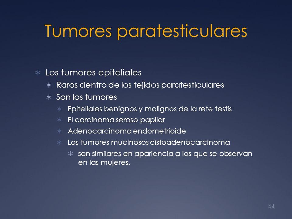 Tumores paratesticulares Los tumores epiteliales Raros dentro de los tejidos paratesticulares Son los tumores Epiteliales benignos y malignos de la re