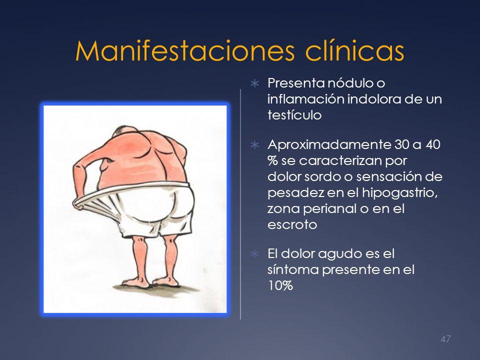 Manifestaciones clínicas Presenta nódulo o inflamación indolora de un testículo Aproximadamente 30 a 40 % se caracterizan por dolor sordo o sensación