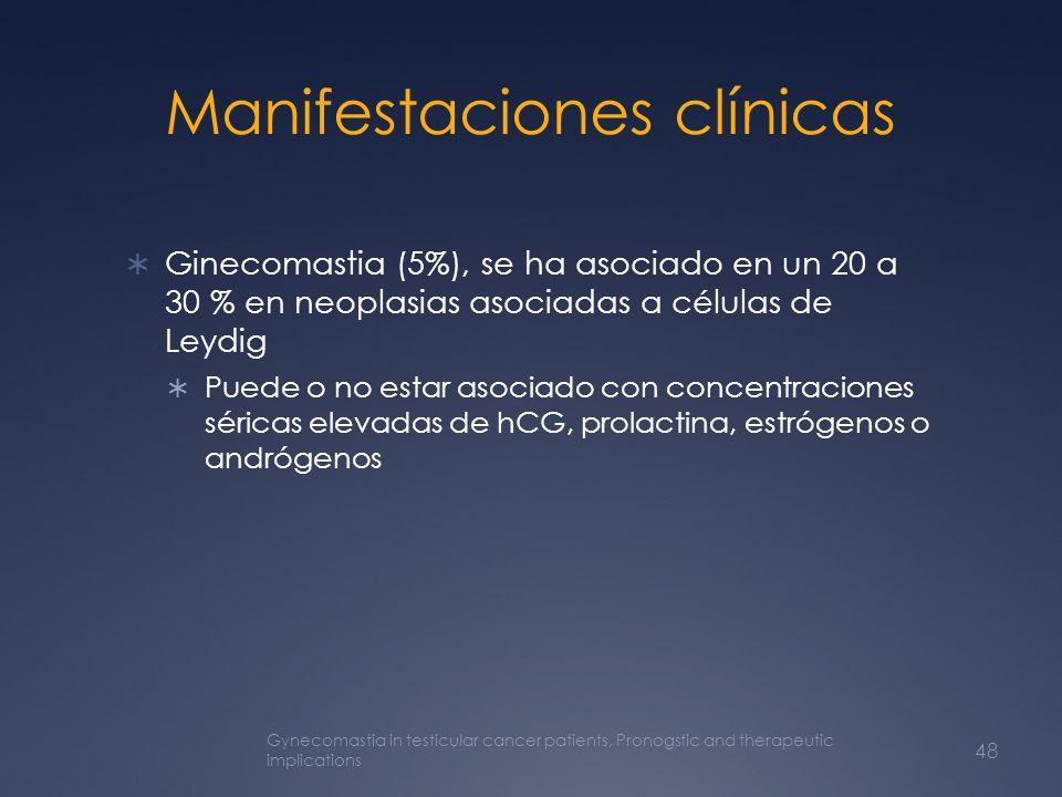 Manifestaciones clínicas Ginecomastia (5%), se ha asociado en un 20 a 30 % en neoplasias asociadas a células de Leydig Puede o no estar asociado con c