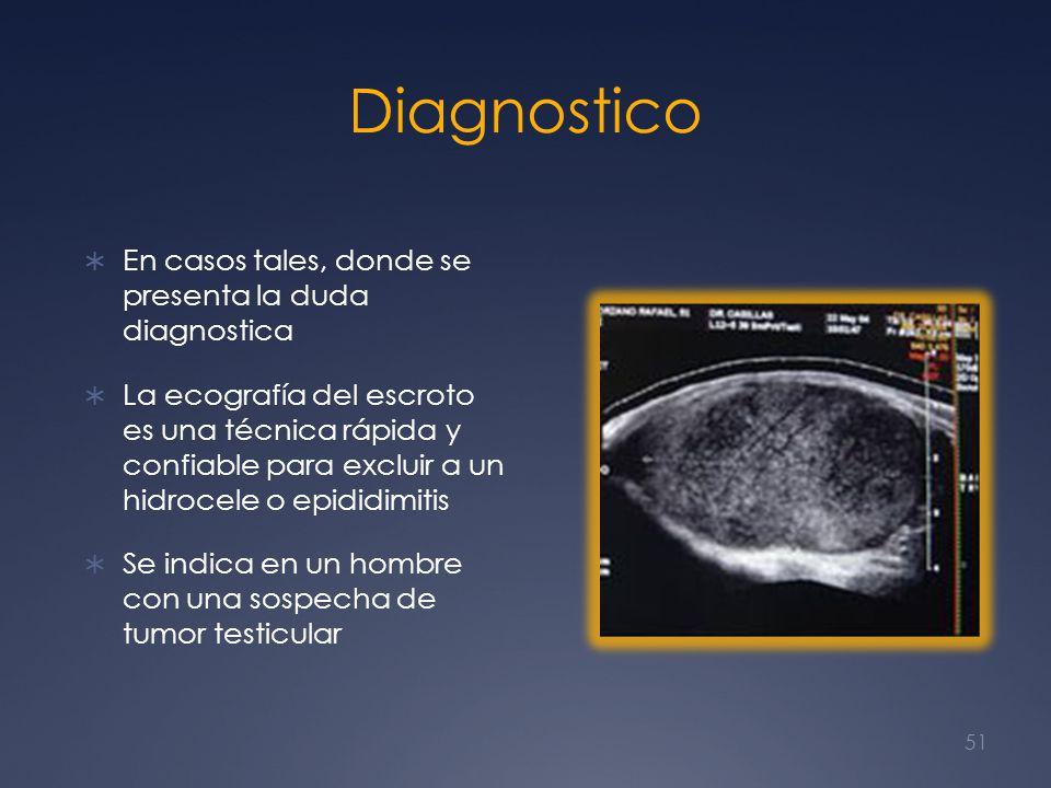 Diagnostico En casos tales, donde se presenta la duda diagnostica La ecografía del escroto es una técnica rápida y confiable para excluir a un hidroce