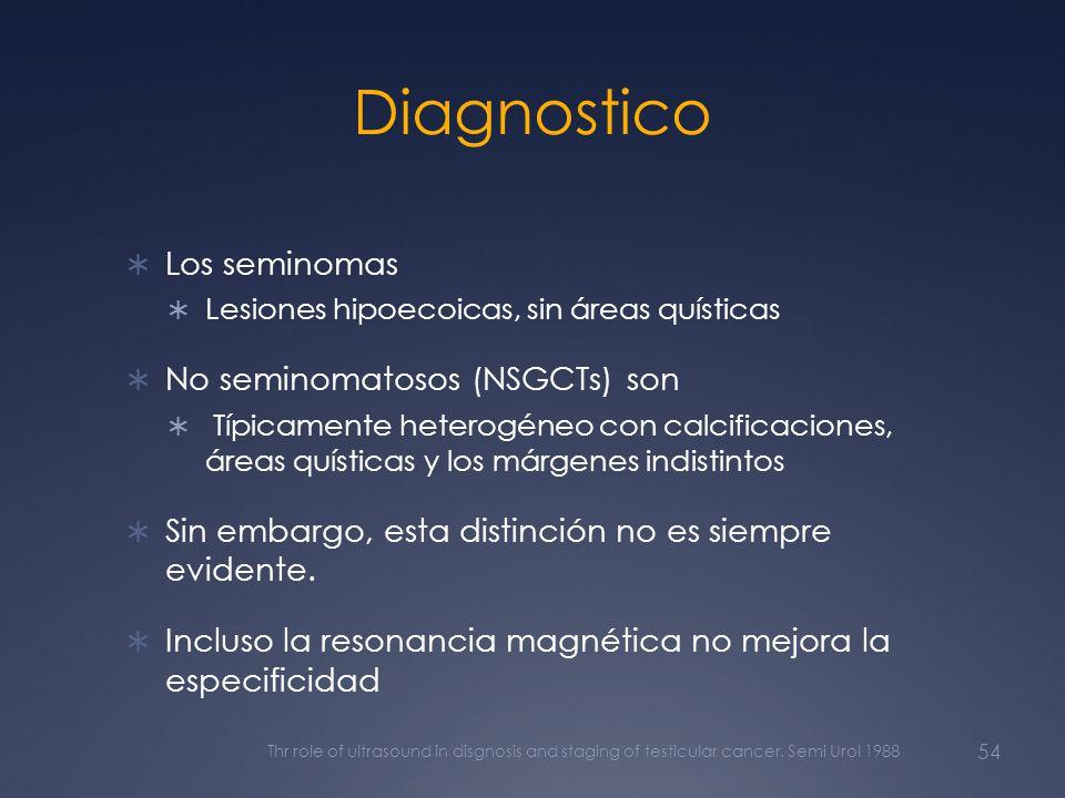 Diagnostico Los seminomas Lesiones hipoecoicas, sin áreas quísticas No seminomatosos (NSGCTs) son Típicamente heterogéneo con calcificaciones, áreas q