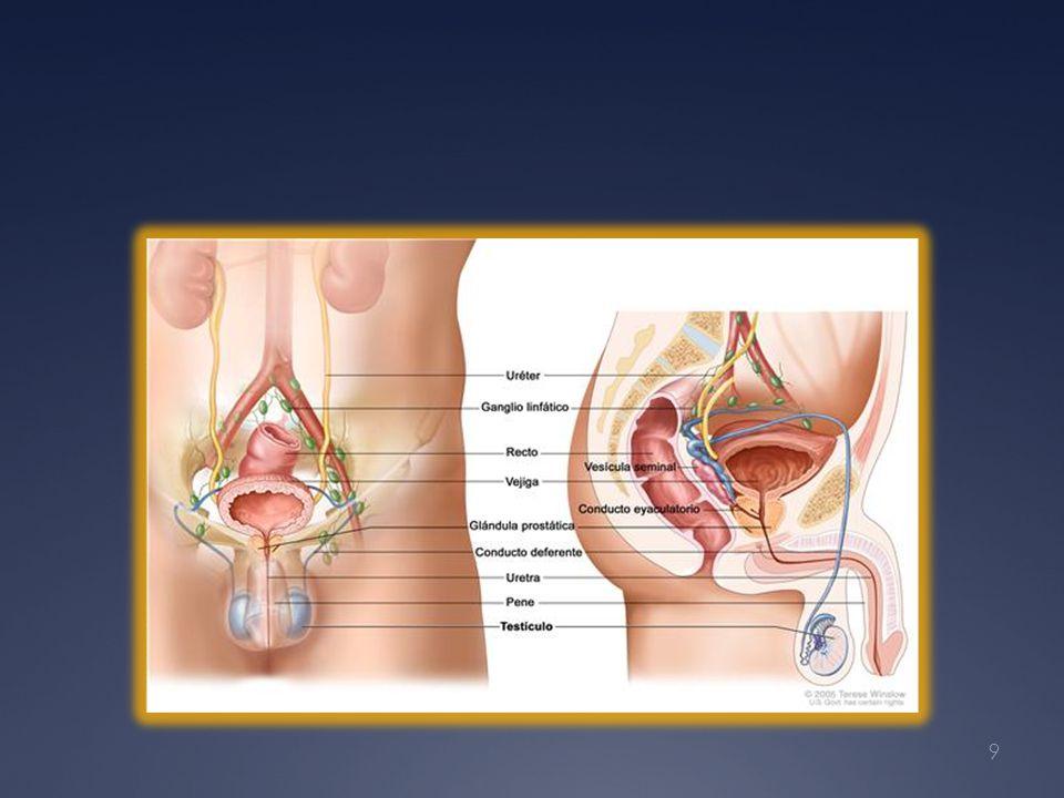 Lactato Deshidrogenasa Están elevadas en 30 a 80 % de los hombres con seminoma puro.