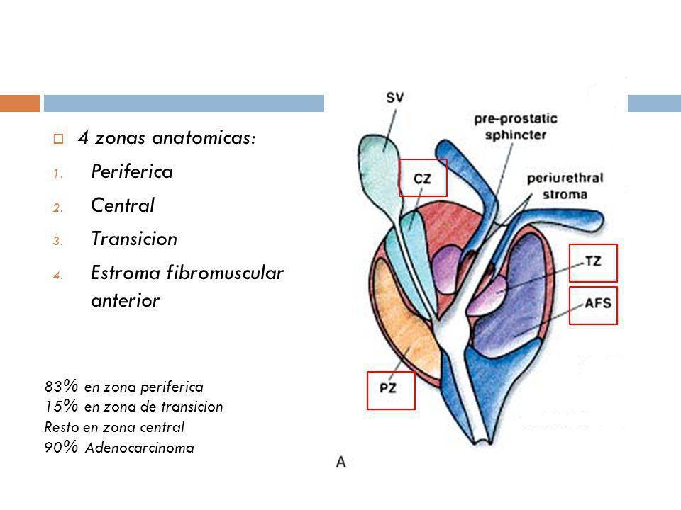 4 zonas anatomicas: 1. Periferica 2. Central 3. Transicion 4. Estroma fibromuscular anterior 83% en zona periferica 15% en zona de transicion Resto en