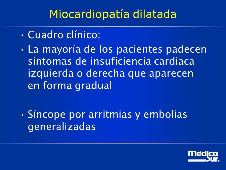 Miocardiopatía dilatada Cuadro clínico: La mayoría de los pacientes padecen síntomas de insuficiencia cardiaca izquierda o derecha que aparecen en for