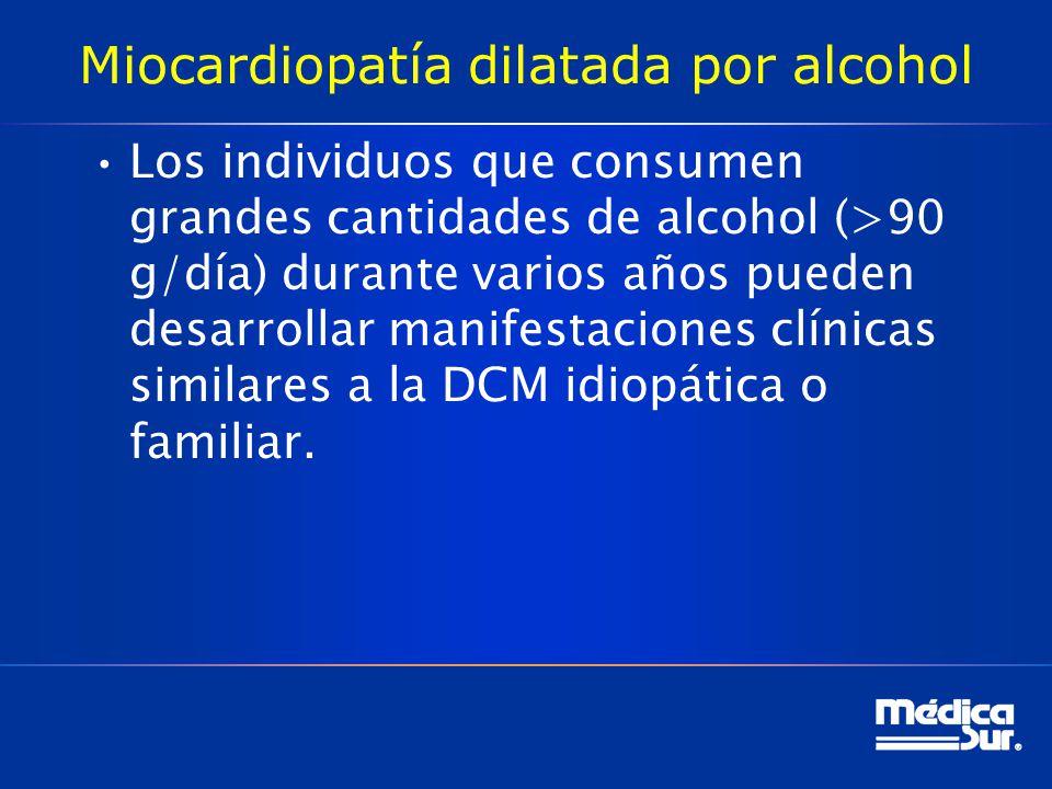 Miocardiopatía dilatada por alcohol Los individuos que consumen grandes cantidades de alcohol (>90 g/día) durante varios años pueden desarrollar manif