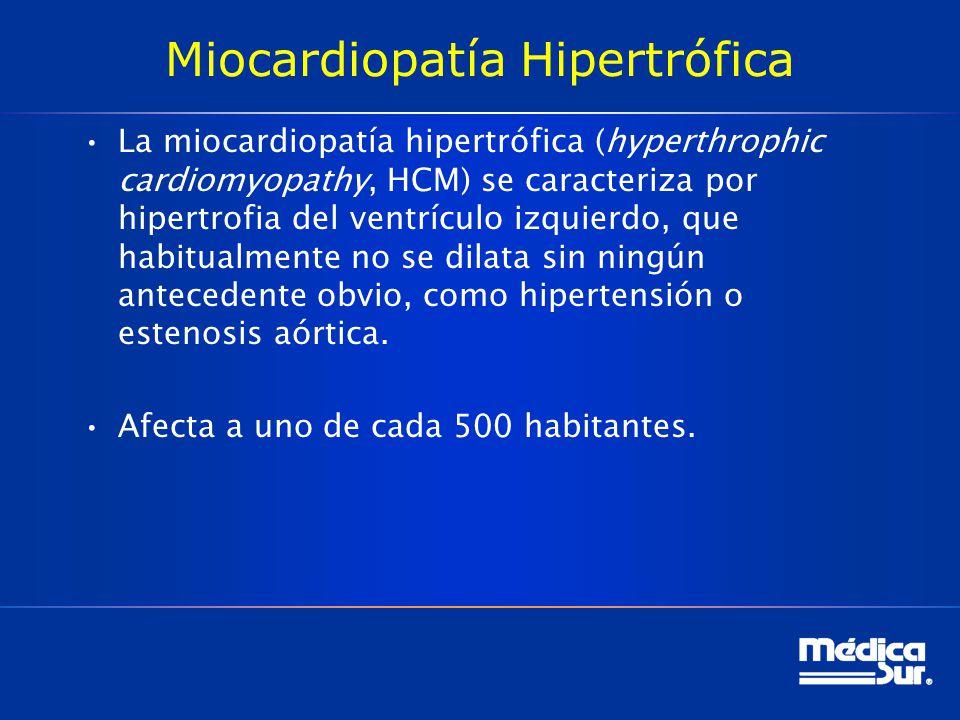 Miocardiopatía Hipertrófica La miocardiopatía hipertrófica (hyperthrophic cardiomyopathy, HCM) se caracteriza por hipertrofia del ventrículo izquierdo